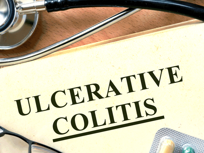 remicade for ulcerative colitis reviews