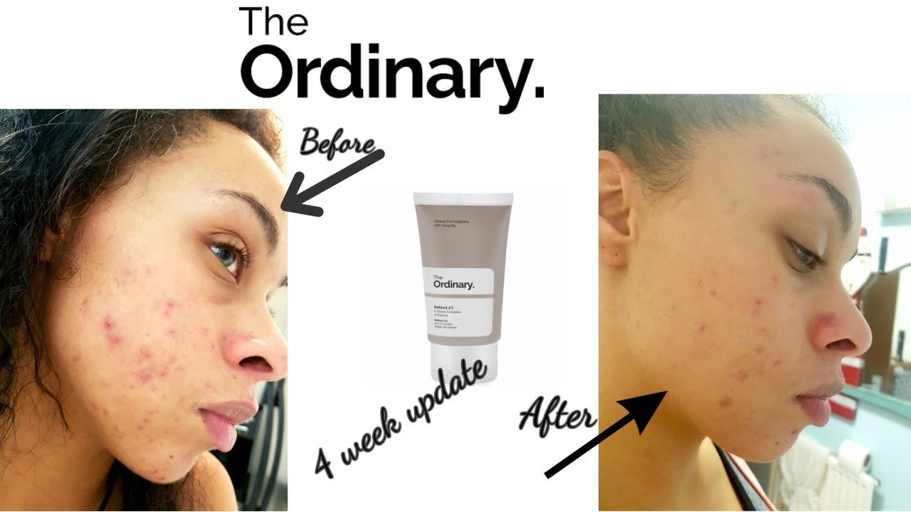 the ordinary retinol 1 review makeupalley
