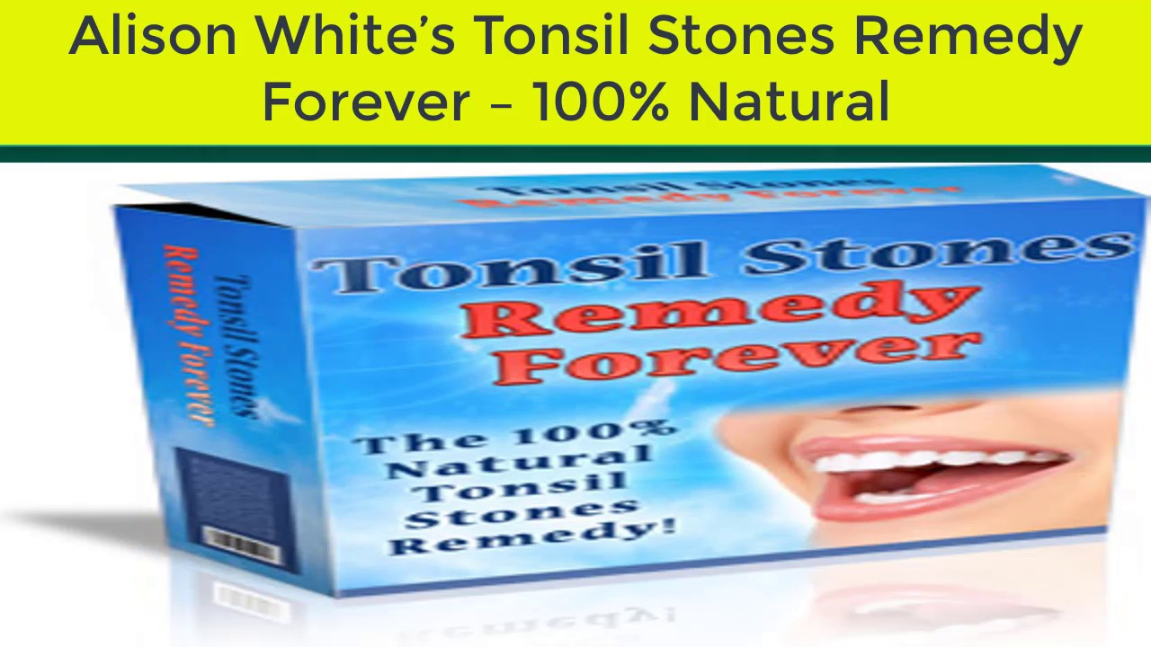 tonsil stones remedy forever review